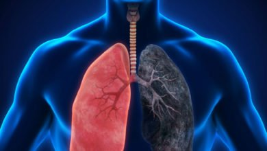 Photo of Lung cancer can be diagnosed at initial stage with certain symptoms